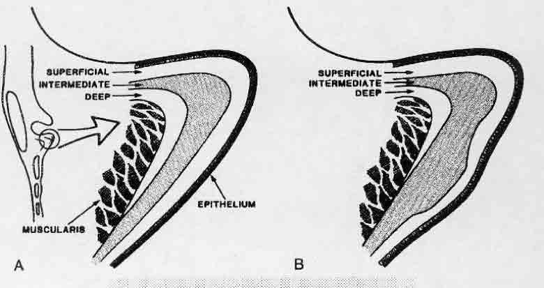 esquema cuerdas vocales